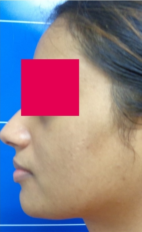 After-Female, 27, One Laser Treatment