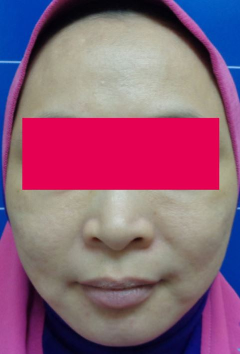 After-Female, 44, HIFU For Face