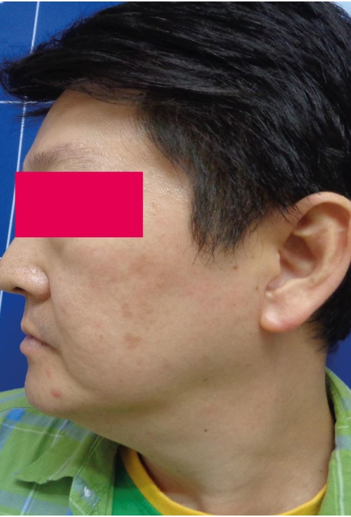 After-Male, 62, Laser For Pigmentation