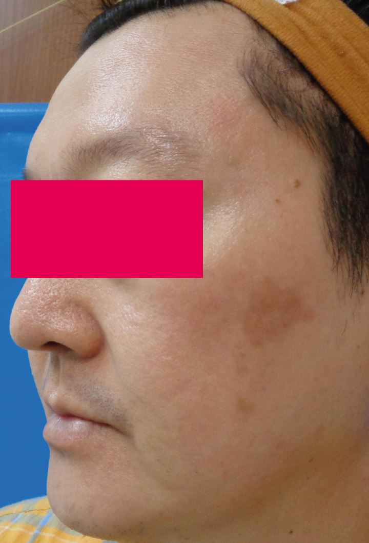 Before-Male, 62, Laser For Pigmentation