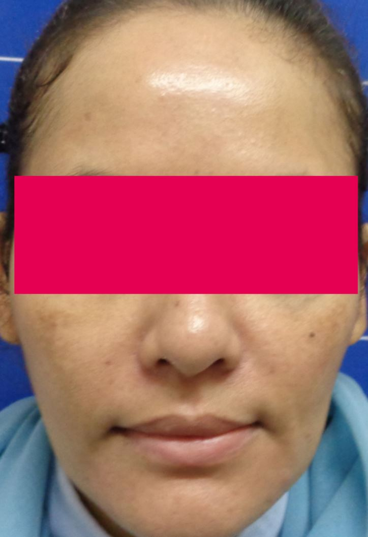 Before-Serdev Suture Threadlift