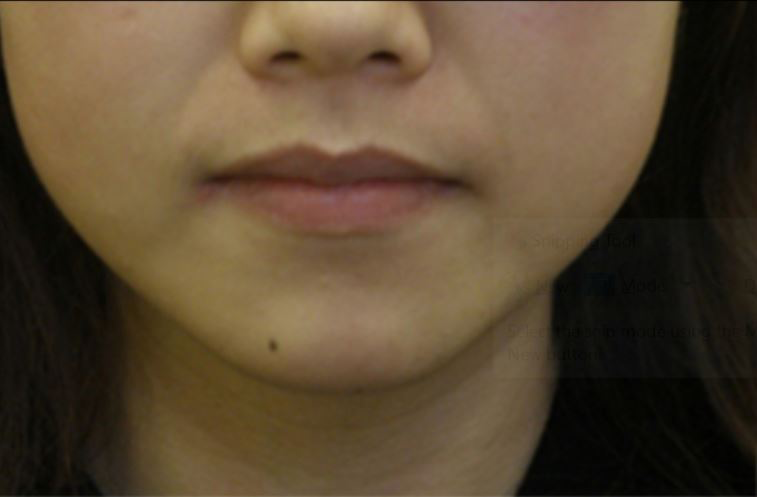 Before-Female, 32, Dermal Filler