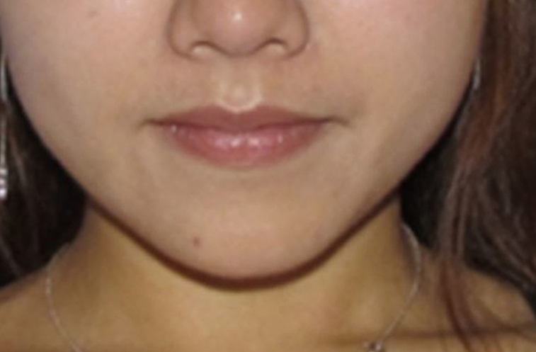 After-Female, 32, Dermal Filler