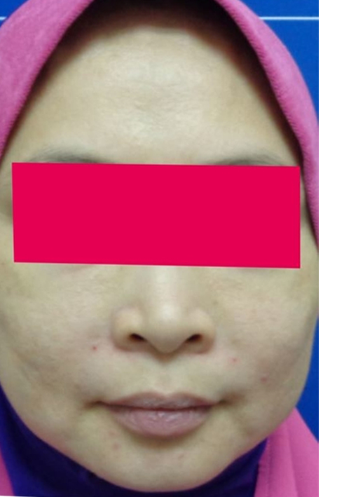 Before-Female, 44, HIFU For Face